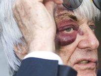 Tvář Bernieho Ecclestona po útoku